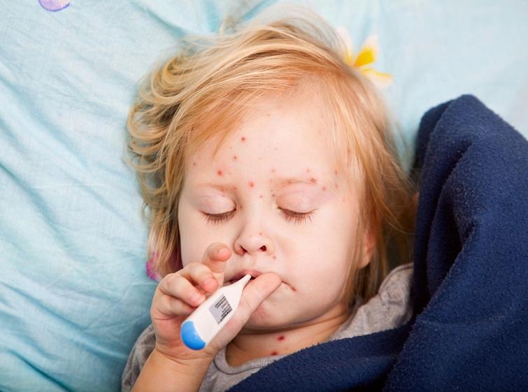 Зпочатку року на кір захворіли близько 3 тис. осіб
