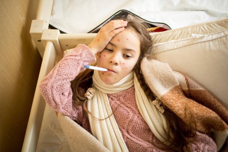 МОЗ фіксує удвох областях значне збільшення захворюваності на кір
