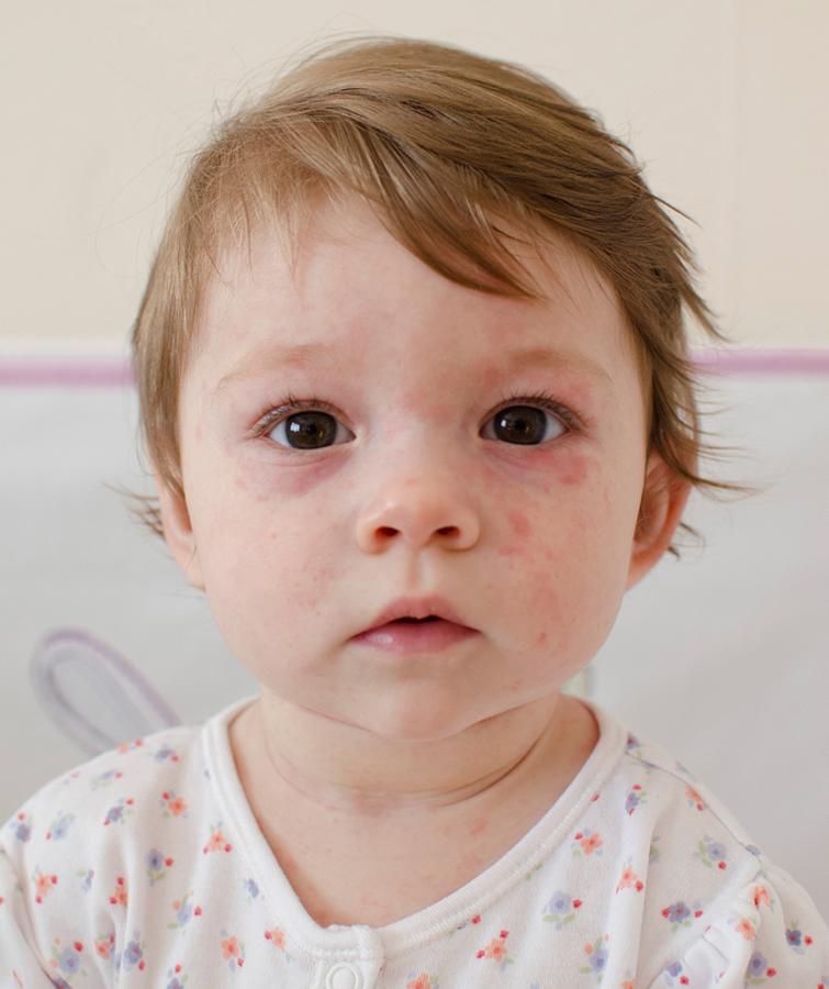 Незабаром на Прикарпаття надійде нова партія вакцин від кору
