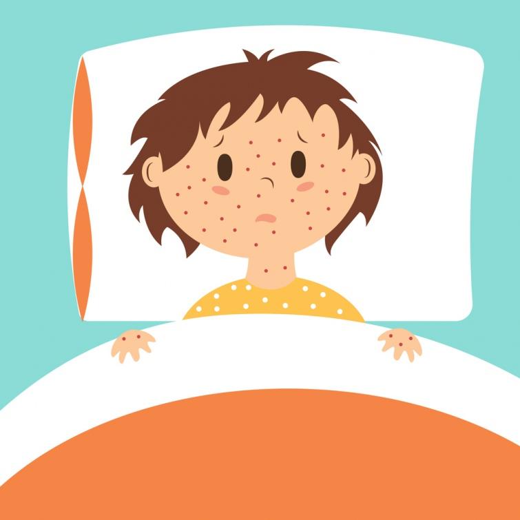 УКиєві зафіксували вже 87 випадків захворювання на кір